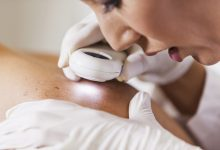 Why You Should Visit the Skin Cancer Clinic